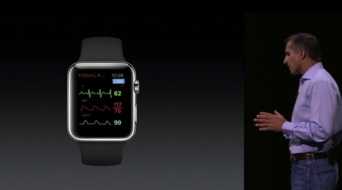 Airstrip Fetal Monitor Running on Apple WatchOS 2