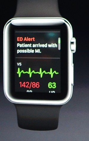 iWatch app alerts MD to ER Patient Admission