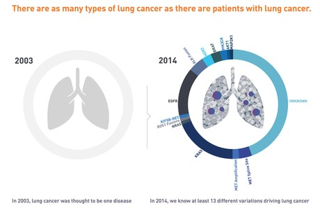 Types of Lung Cancer known in 2014